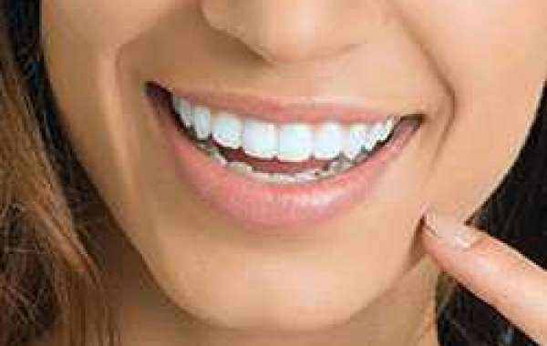 10 Secrets Your Emergency Dentist will Never Tell You