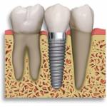 Dental Implant Profile Picture
