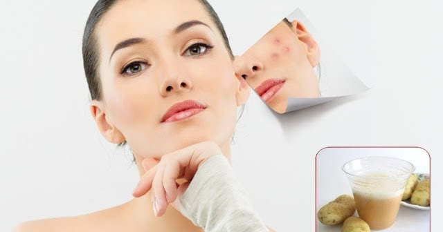 Home remedies To Get Rid Of Acne Scars - UltraTech4You