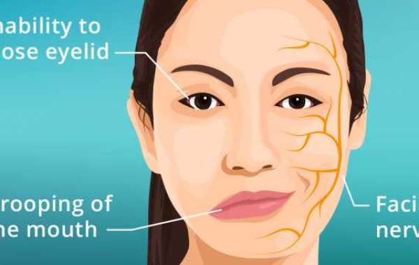 Physiotherapist For Bell's Palsy And Spinal Damage