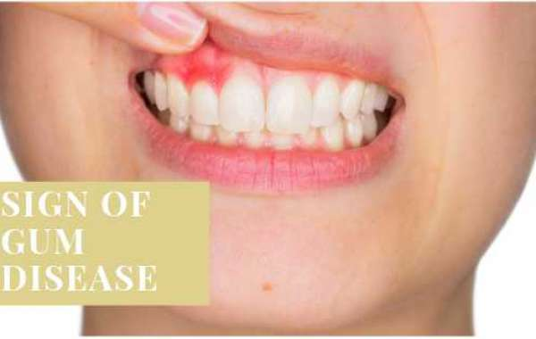 Importance of Early Detection and Symptoms of Gum Disease