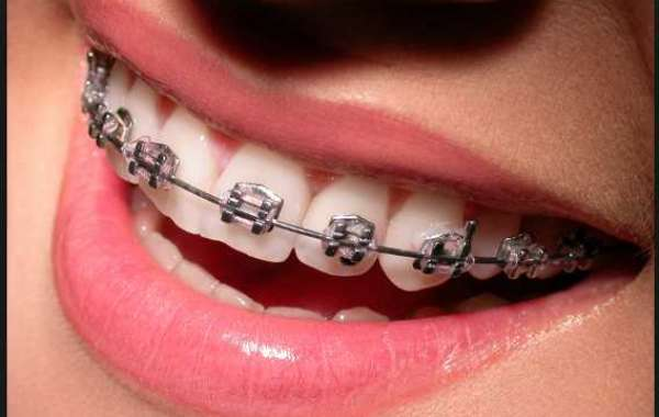 Braces Essendon - Dentist Essendon | Braces | (03) 9351 0999