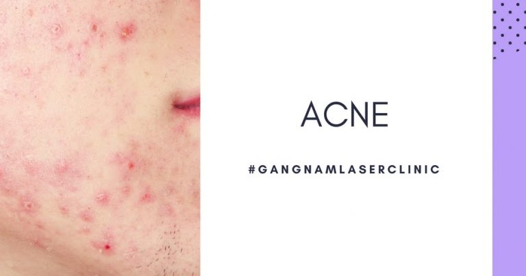 Essential Tips to Solve Acne & Scar Problems Via Specialist