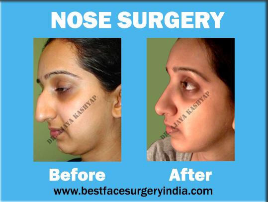 Rhinoplasty: Get a Perfect Shaped Nose Now!