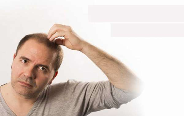 Looking for Hair Transplant Cost in Gurgaon