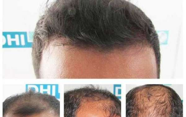 Various Hair Transplant Services Provided by DHI Delhi Clinic