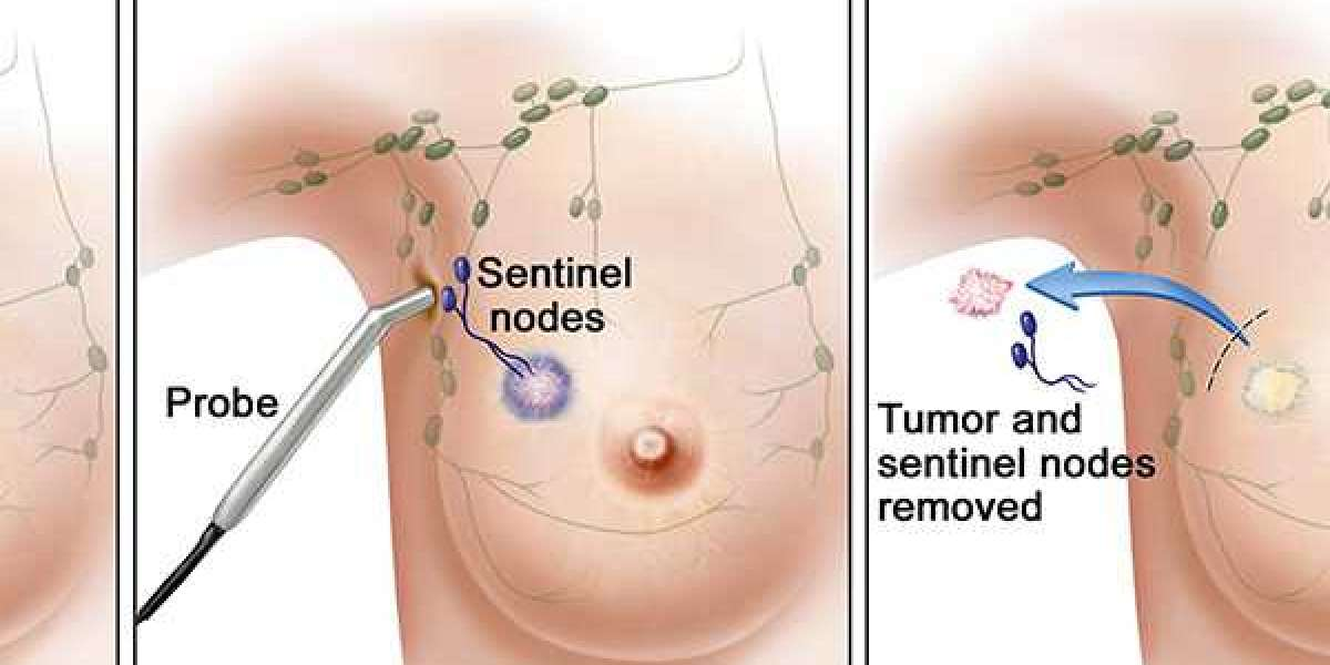 Sentinel Node Biopsy Market Technological Enhancements, Trend Analysis and Growth Report 2020