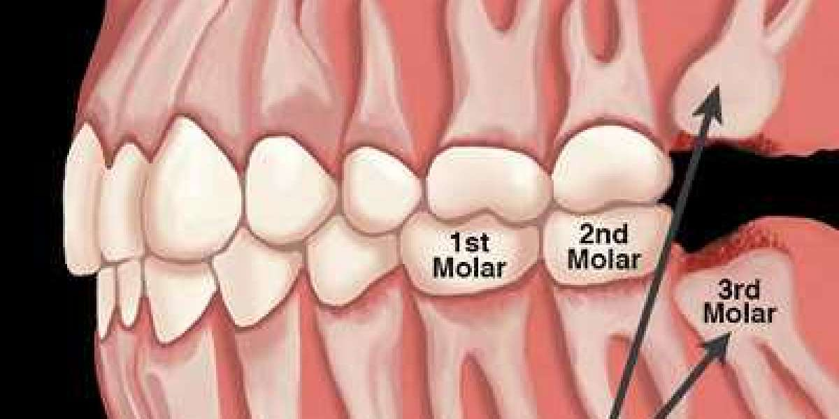 6 Things everyone should know about wisdom tooth removal