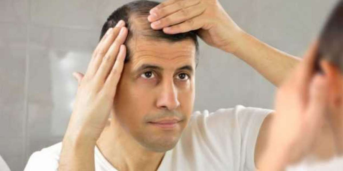 At What Age Can Male Pattern Baldness Begin?