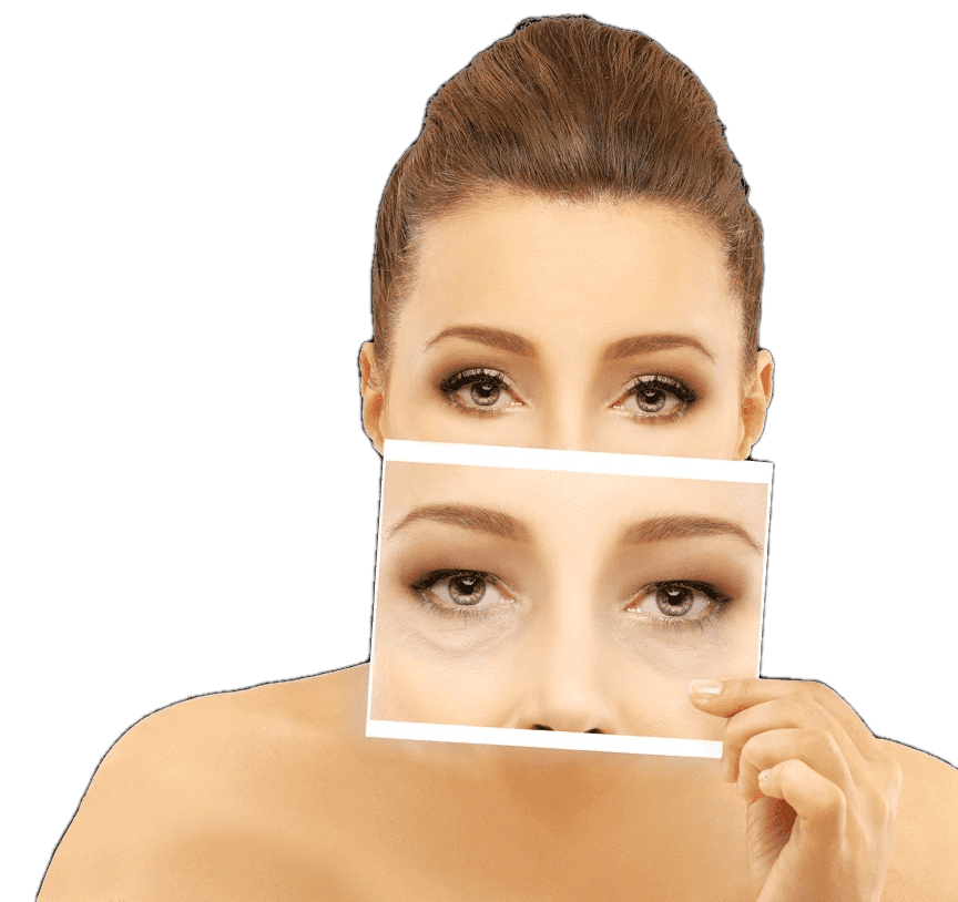 Facelift Cosmetic Surgery in Thailand