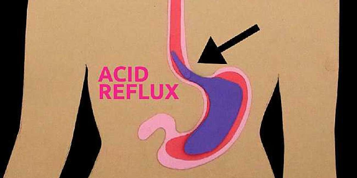 How to Prevent Symptoms of Acid Reflux without Medications