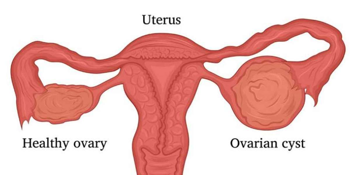 All you need to know and be aware about Ovarian Cyst!