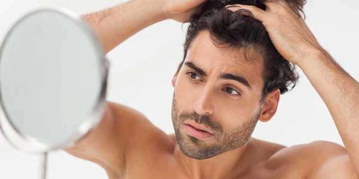 Important Things You Need To Know About Hair Loss