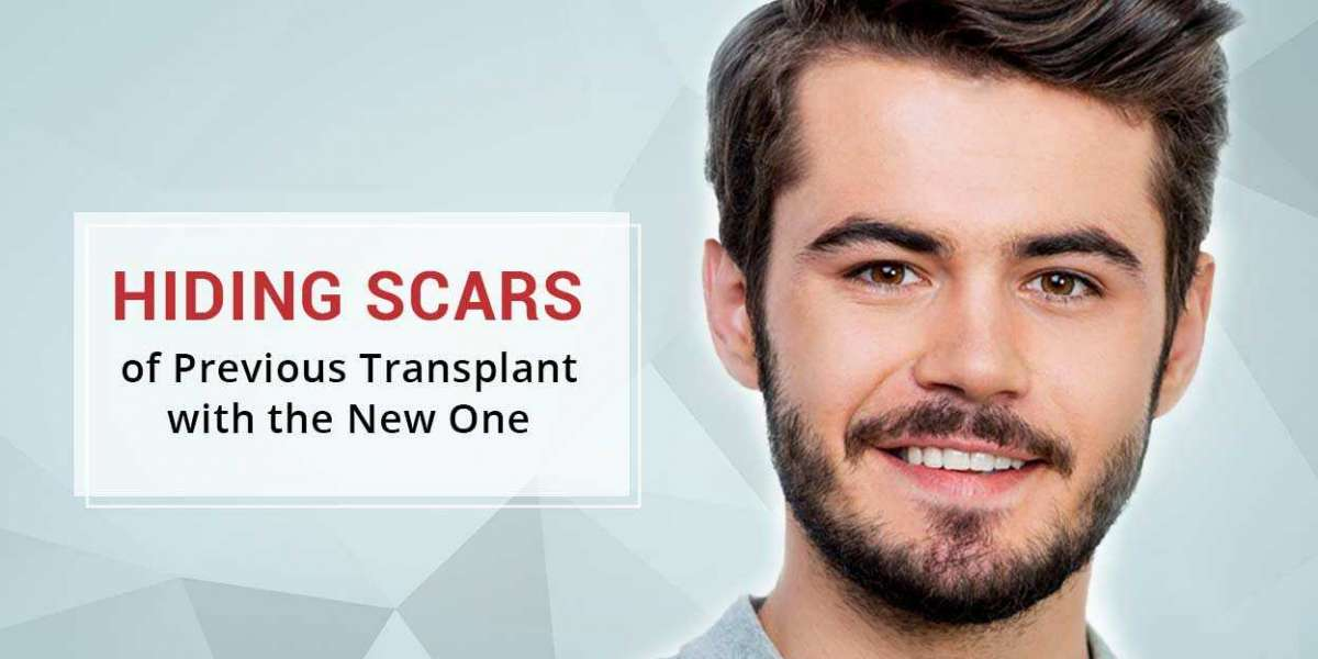Why India is one of the Best Countries for Hair Transplant Surgery?