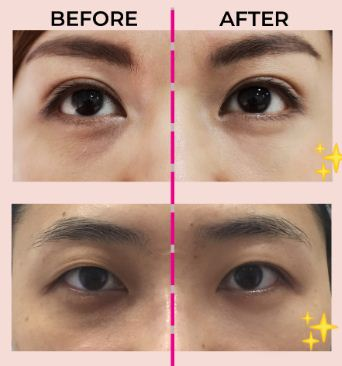 3 Things That One Should Know About If They Want To Treat Their Eye Bags - Healthsprings Aesthetics | Medical-Proven Treatments | For Face & Body in Singapore