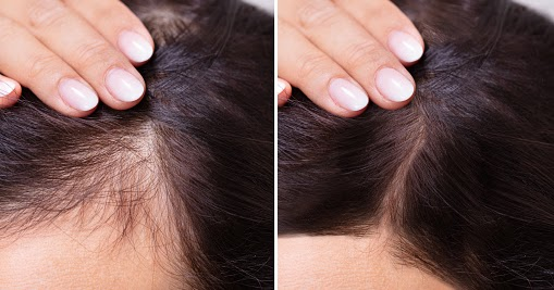 To Know About Hairline Restoration.