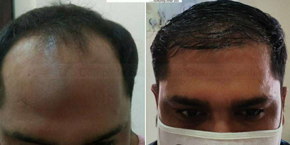 The Common Methods of Hair Transplant
