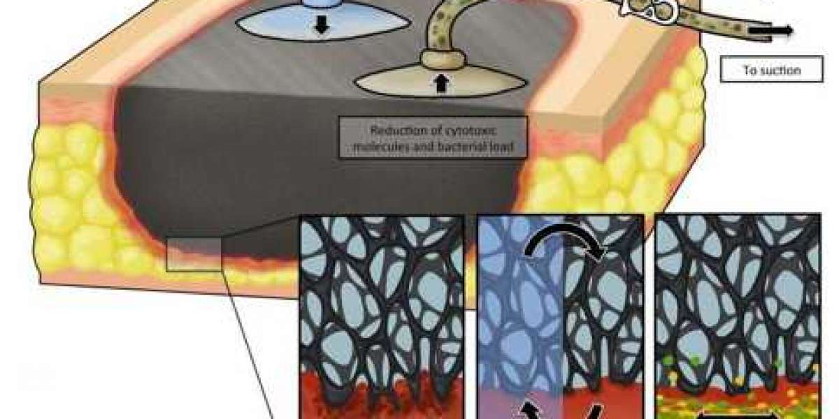 NEGATIVE PRESSURE WOUND THERAPY WITH IRRIGATION