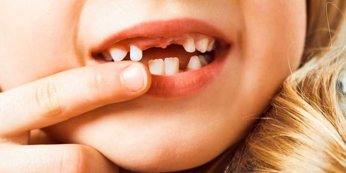 Top 5 Common Dental Problems in Kids