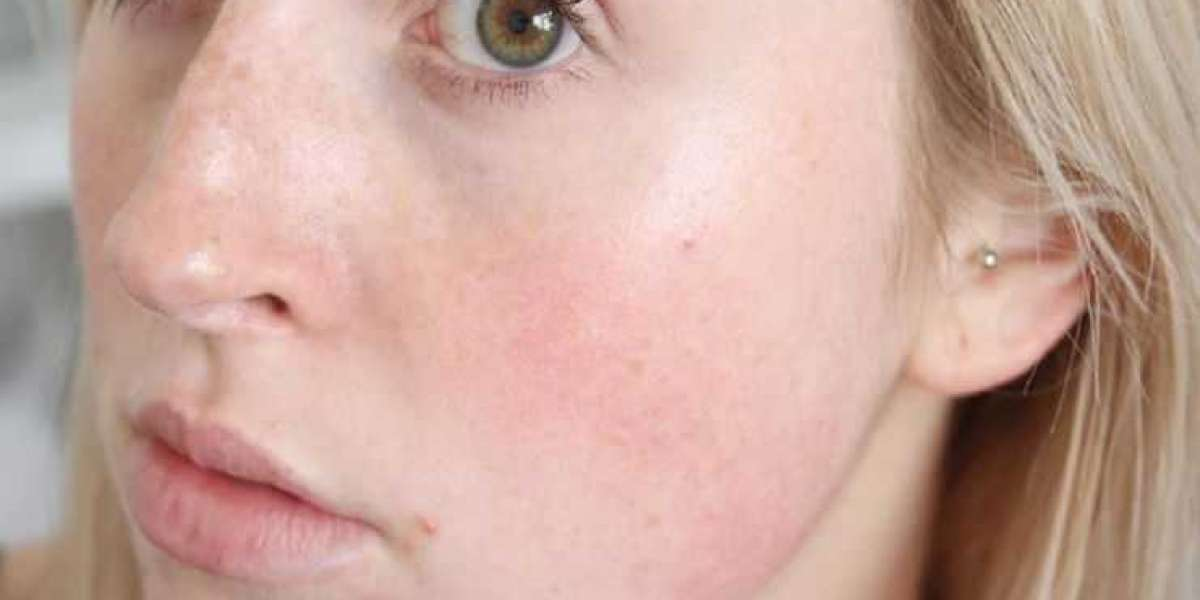 How To Get Rid Of Redness On Face Fast