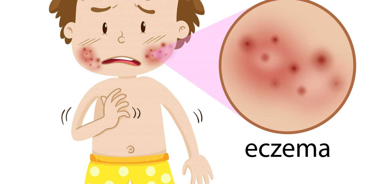 Is it normal to be anxious or depressed when you have eczema?