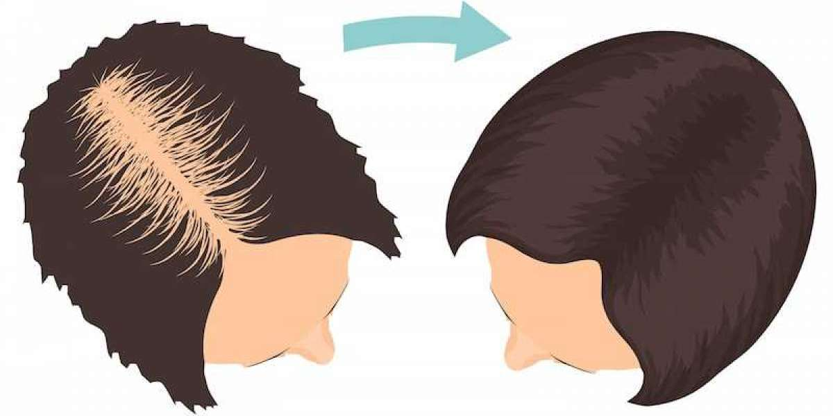 What can you do about hair loss?