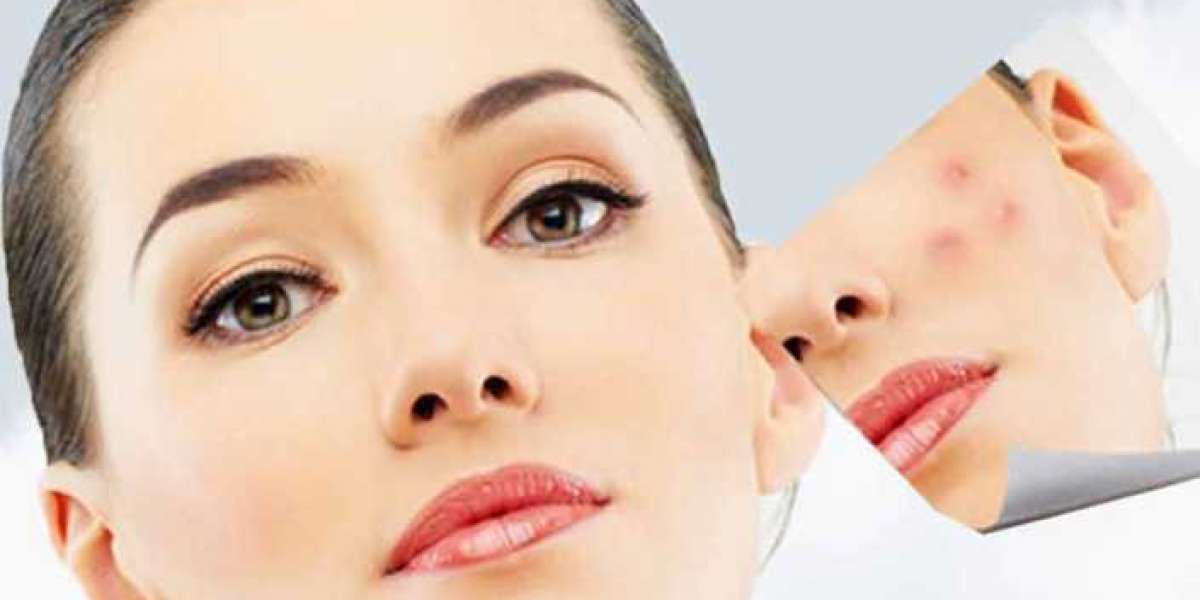 Get in Touch With The Best Dermatologist in Ludhiana