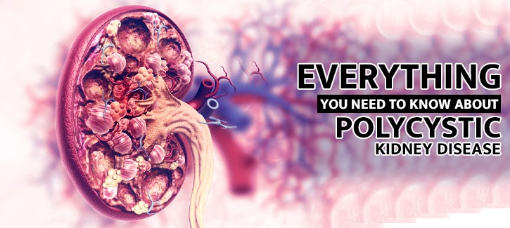 Everything you need to know about polycystic kidney disease