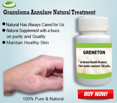 Natural Remedies for Granuloma Annulare Cure Yourself at Home Naturally