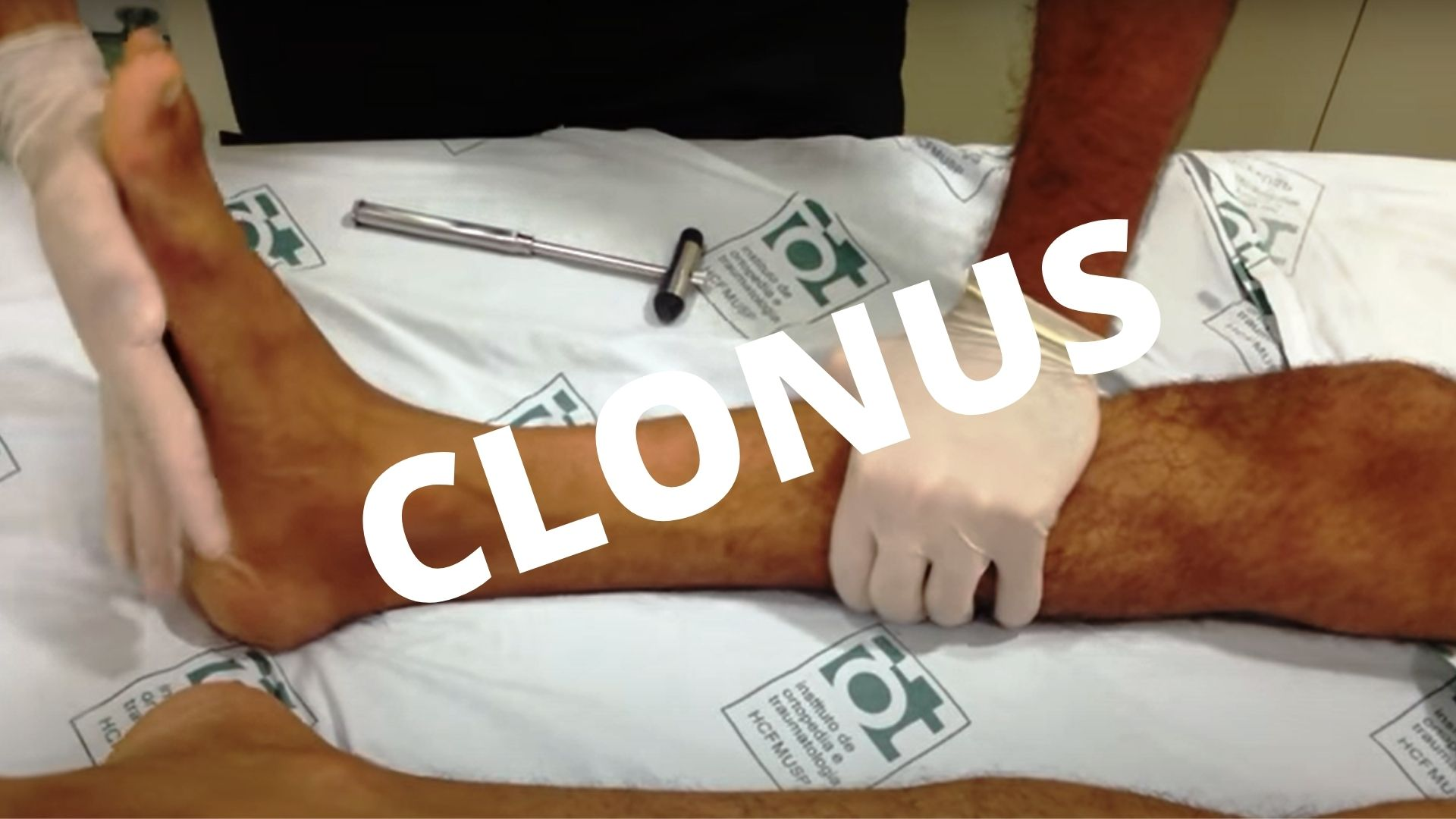 Clonus: Definition, Causes, Identify, Test, Treat And Stop
