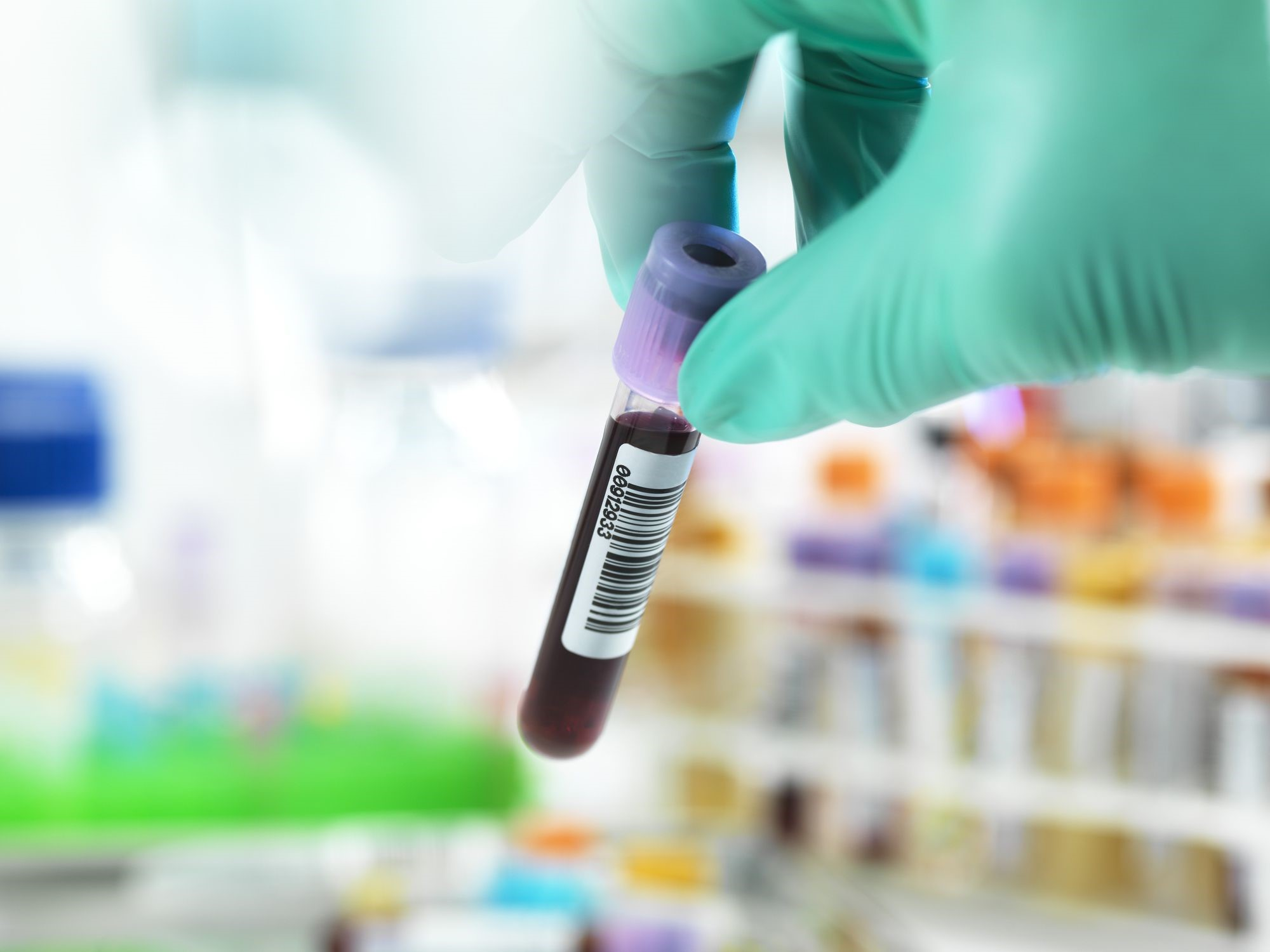 Tips for Selecting the Right Needle for Blood Collection